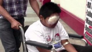 Cuatro niños seriamente heridos por manipular pirotécnicos