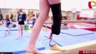 Niñas con discapacidad física se convierten en nuevas promesas de la gimnasia