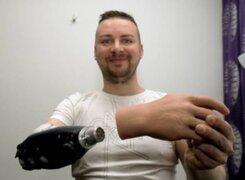 Tres jóvenes recibieron trasplantes de manos biónicas en Austria