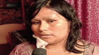 Dan de alta a mujer agredida brutalmente por su expareja en SMP
