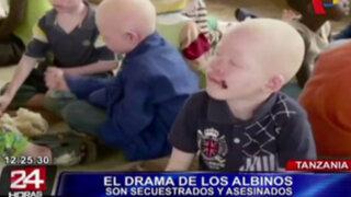 Tanzania: personas albinas sufren violencia y estigmatización