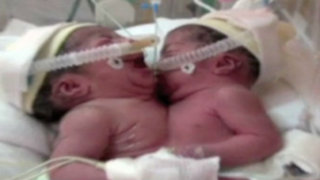 Siamesas nacidas en Trujillo serán trasladadas a Lima