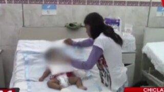 Chiclayo: amputan brazo a bebé por mordedura de serpiente