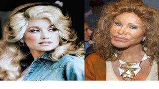 FOTOS : 8 celebridades que abusaron de las cirugías estéticas