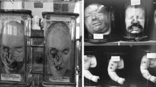 FOTOS : lo que se encontró en este museo es realmente terrorífico