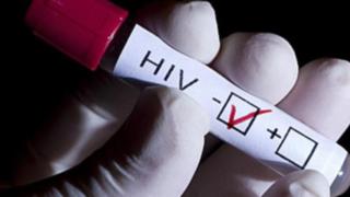 """Científicos chinos afirman haber descubierto """"cura funcional"""" para el VIH"""