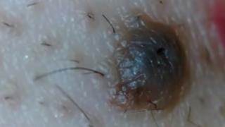 YouTube: ¿Qué podría salir de un punto negro en la cara?