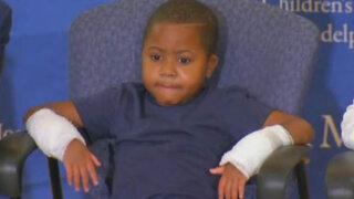 Conoce a Zion Harvey, el primer niño del mundo que recibe un trasplante de manos
