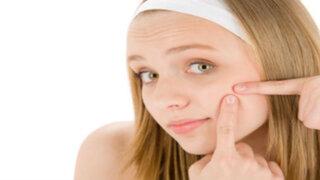 Doctor en Familia : aprende a combatir el acné de forma casera