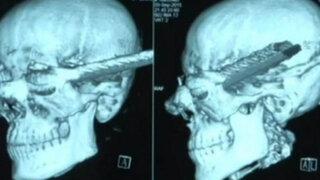 VIDEO: barra de acero atraviesa cabeza de obrero y este sobrevive