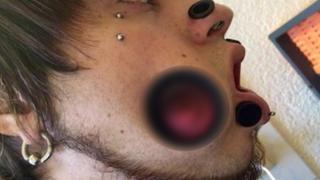 FOTOS: los increíbles daños dejados por los 'piercings' gigantes y su solución