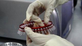 Laboratorio del Minsa permitirá detectar metales pesados en pacientes