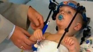 FOTOS: logran unir cabeza de niño decapitado y le salvan la vida