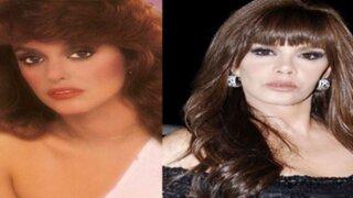 Antes y después: el rostro de las estrellas tras las cirugías