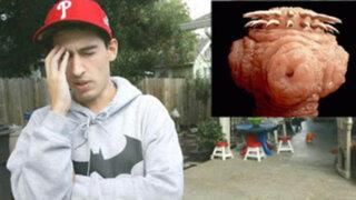 Médicos sorprendidos: encuentran lombriz en el cerebro de un joven