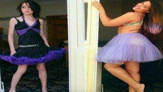 EEUU: el impactante cambio de una mujer que sufría de anorexia