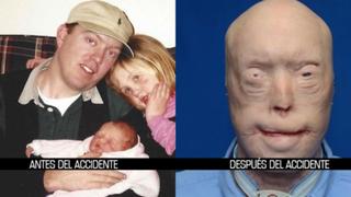 Histórico trasplante de rostro a bombero que se desfiguró en incendio