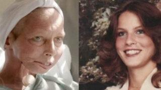 VIDEO: después de conocer la historia de Terrie Hall pensarás mucho antes de fumar