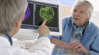 Alzheimer: lo que debes saber sobre el transtorno que ataca la memoria