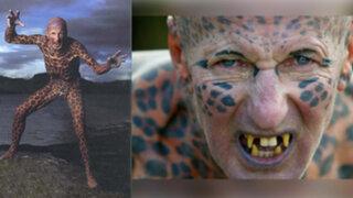 FOTOS: 7 modificaciones corporales extremas que fueron demasiado lejos