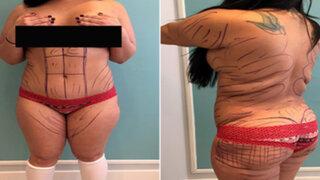 FOTOS: mujer gasta 10 mil dólares para tener el trasero de Kim Kardashian