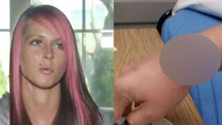 FOTOS: un objeto cotidiano provocó una severa lesión en la piel de esta joven