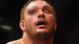 Impactantes imágenes: Matt Mitrione casi pierde ojo derecho durante pelea