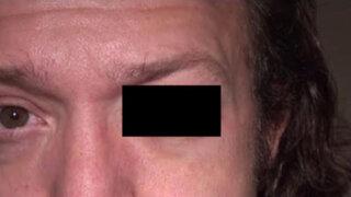 Tenía una pequeña molestia en el ojo izquierdo y lo que descubrió el médico fue impactante