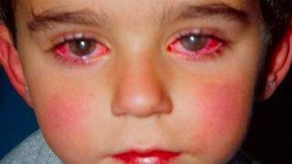 FOTOS: niño pierde 75% de visión por usar un 'juguete' que casi todos tenemos en casa