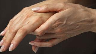 Doctor en Familia: ¿Cuál es la mejor forma de evitar el reumatismo?