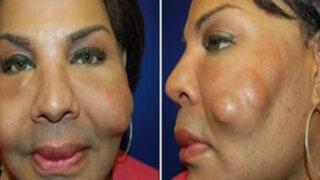 FOTOS: 8 cirugías estéticas que tuvieron resultados realmente perturbadores