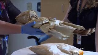 FOTOS: este bebé murió hace 300 años y ahora los médicos intentan descubrir el porqué