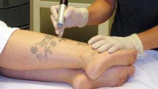 Todo sobre el láser para borrar tatuajes y manchas en la piel