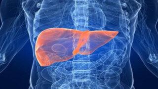 Doctor en Familia: ¿Qué es el hígado graso y cómo se puede prevenir?
