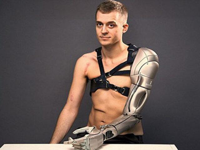 Así es el impresionante brazo biónico que busca mejorar la vida de muchas personas