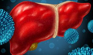 Doctor en familia: La hepatitis, una enfermedad mortal que amenaza a los peruanos