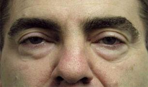Doctor en familia: ¿Qué es y cómo nos afecta la degeneración de los párpados inferiores?