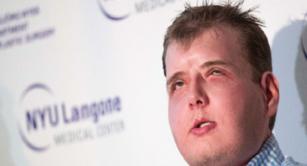 La nueva vida de Patrick Hardison, el hombre que recibió un trasplante de rostro
