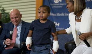 EEUU: exitoso trasplante de manos a un niño