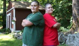 Gemelos de 12 años con apetito insaciable preocupa a médicos en Estados Unidos