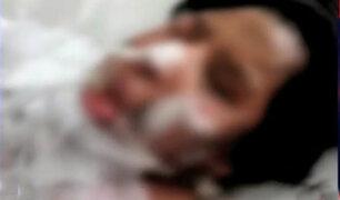 Comas: mujer embarazada fue quemada por su pareja