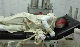 Bolivia: joven fue quemado vivo a pedido de su exnovia