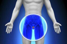 Sepa cómo prevenir las enfermedades de la próstata