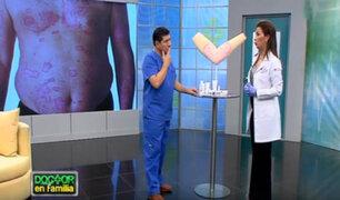 Doctor en Familia: tratamientos efectivos para combatir la Psoriasis