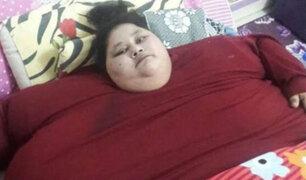 FOTOS: mujer más obesa del mundo se opera para poder sobrevivir