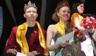 Un concurso de belleza sólo para albinos en Africa