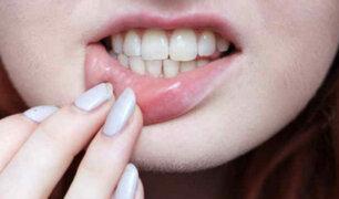 ¿Si sueñas que se te caen los dientes alguien morirá?