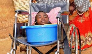 Muere una joven sin extremidades que vivía en una tina de plástico