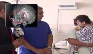 INSN: médicos salvan a niño con varilla incrustada en la cabeza