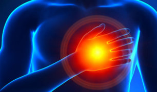 Cuidado: Estos cinco síntomas te avisan que estás a punto de sufrir un infarto